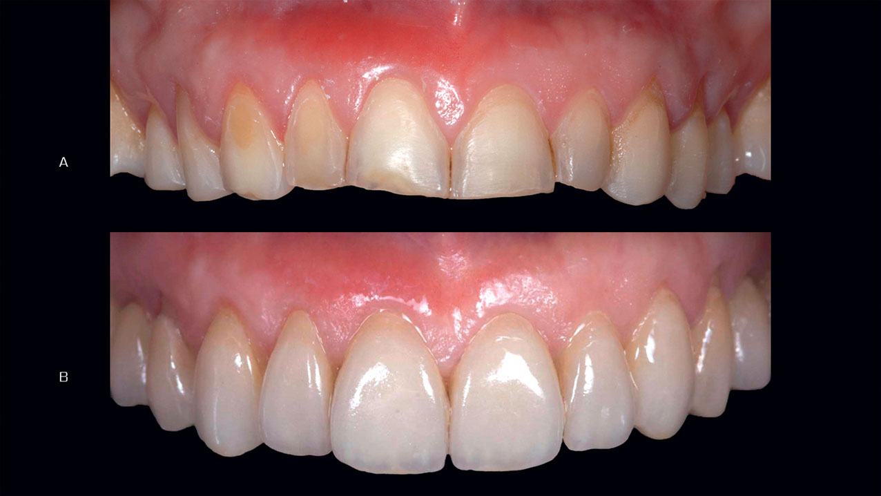 Figure 21 Prepared teeth before (up) and after (down) cementation of veneers and onlays in layered lithium disilicate