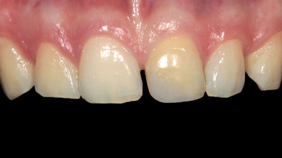 Figure 2 Case 1: discoloration of 2.1, diastema between 2.1 and 1.1 and insufficient incisal height of 2.1 and 1.1
