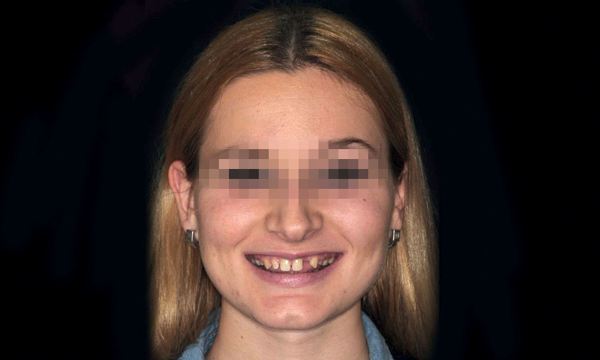 Figure 7 Case 2: young girl with aesthetic deficit in the anterior segment