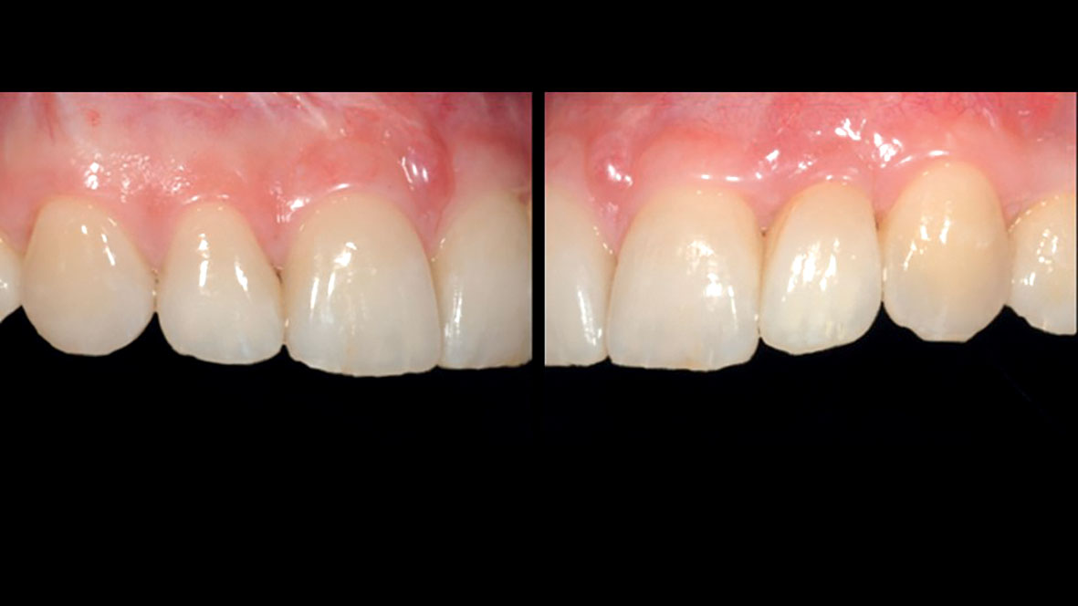 Figure 11 Veneers on anterior segment and layered disilicate lithium crown on implant in 2.2