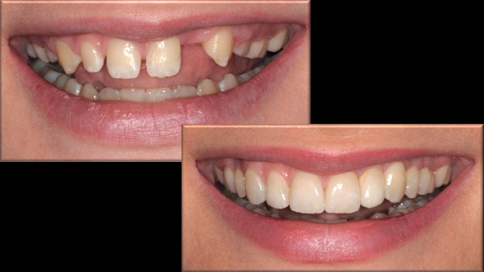 Figure 13 Smile before and after treatment