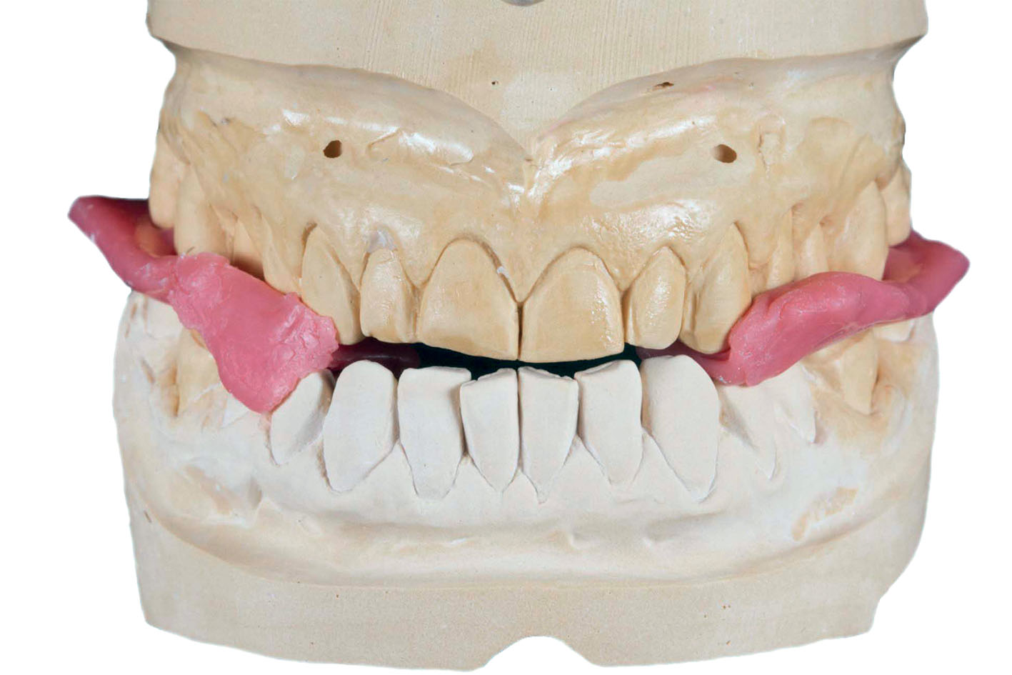 Figure 17 Restoration of the lost occlusal height