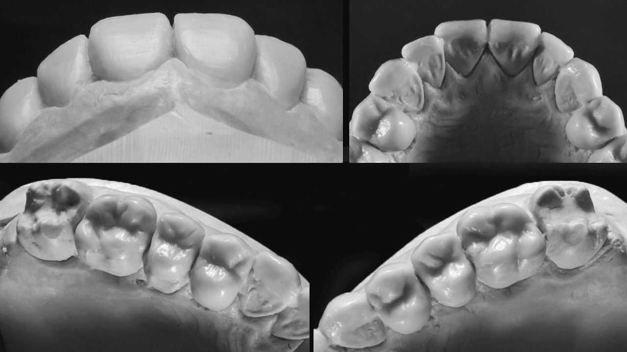 Figure 18 Wax-ups based on the planned restoration of the lost occlusal height