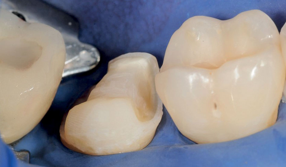 Figure 23 Composite build-up