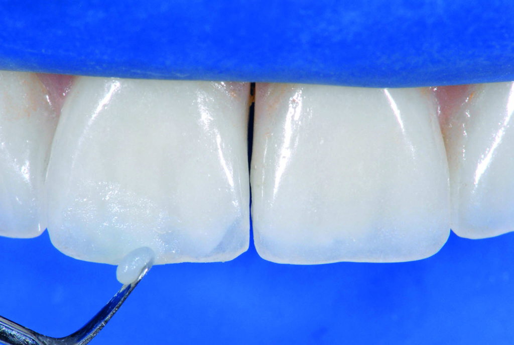 Intra Oral Repair Technique For Ceramic Fracture Using
