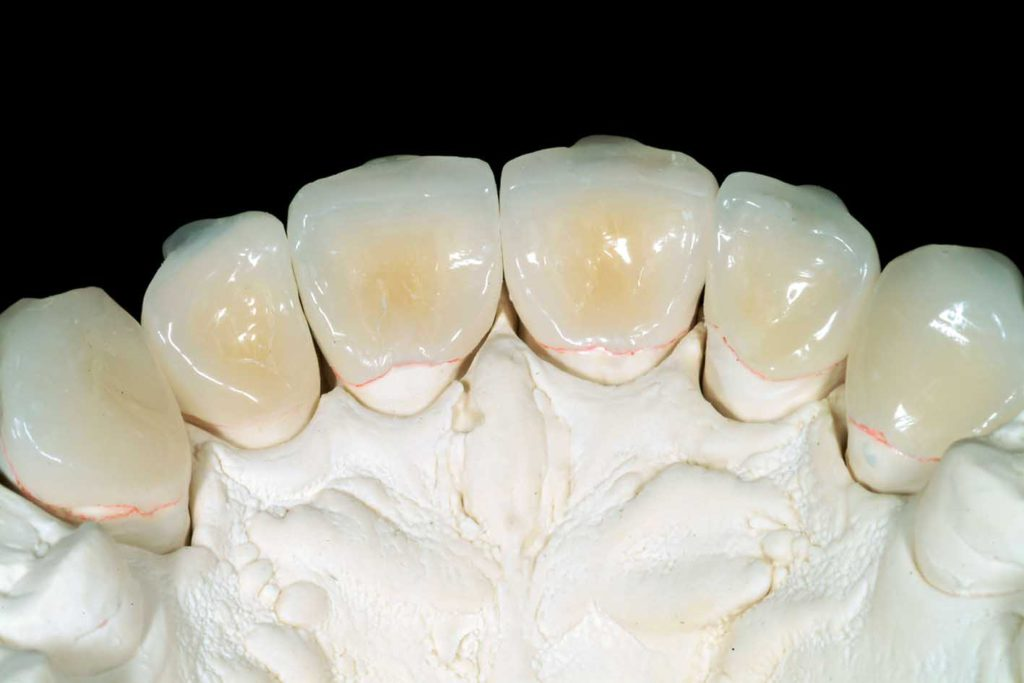 Composite Palatal Veneers To Restore A Case Of Severe