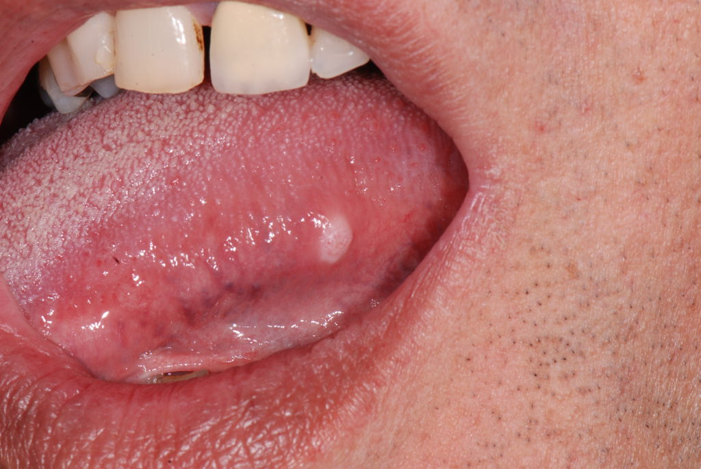 Squamous cell carcinoma tongue images for Floor of mouth cancer