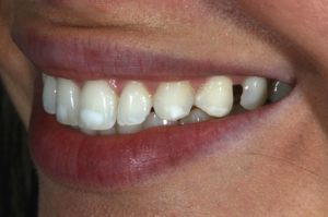 Treatment Of White Spot Lesions Due To Enamel