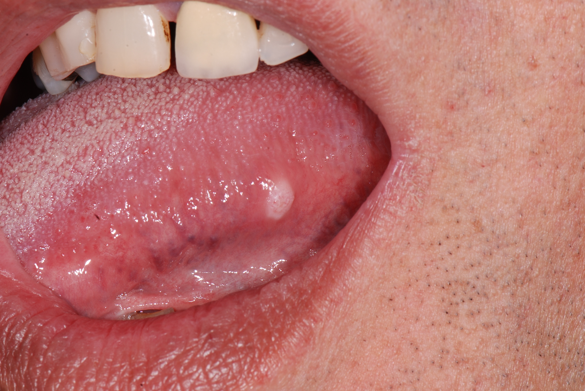 Juvenile Ossifying Fibroma