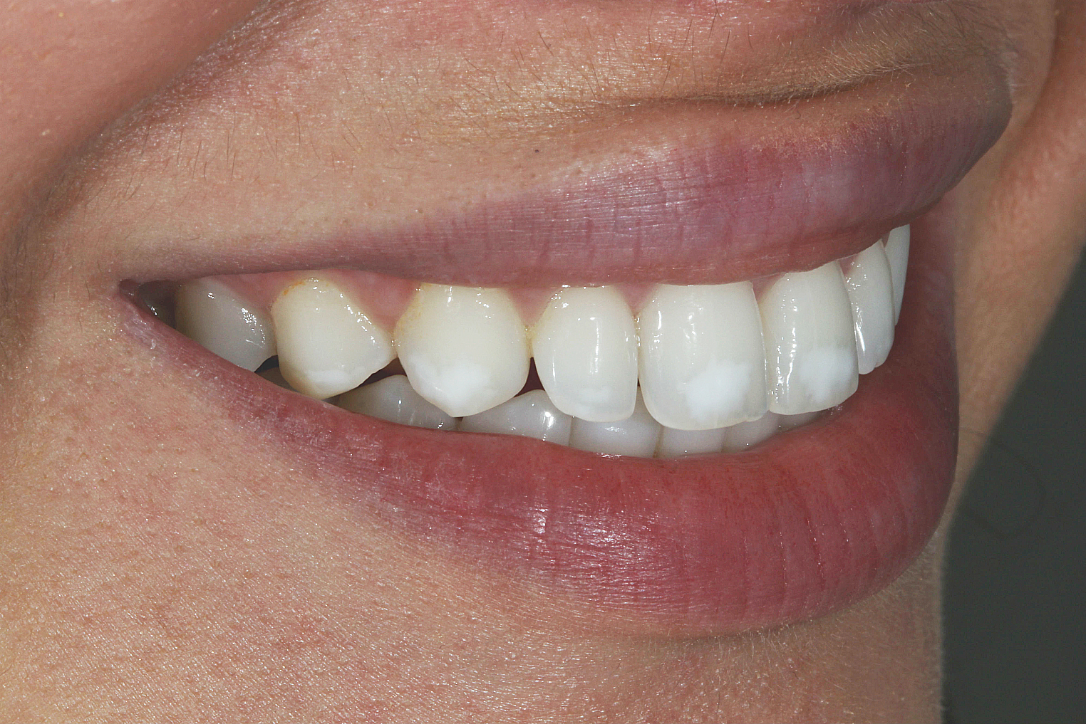 Teeth White Medicine Whitening For Teeth